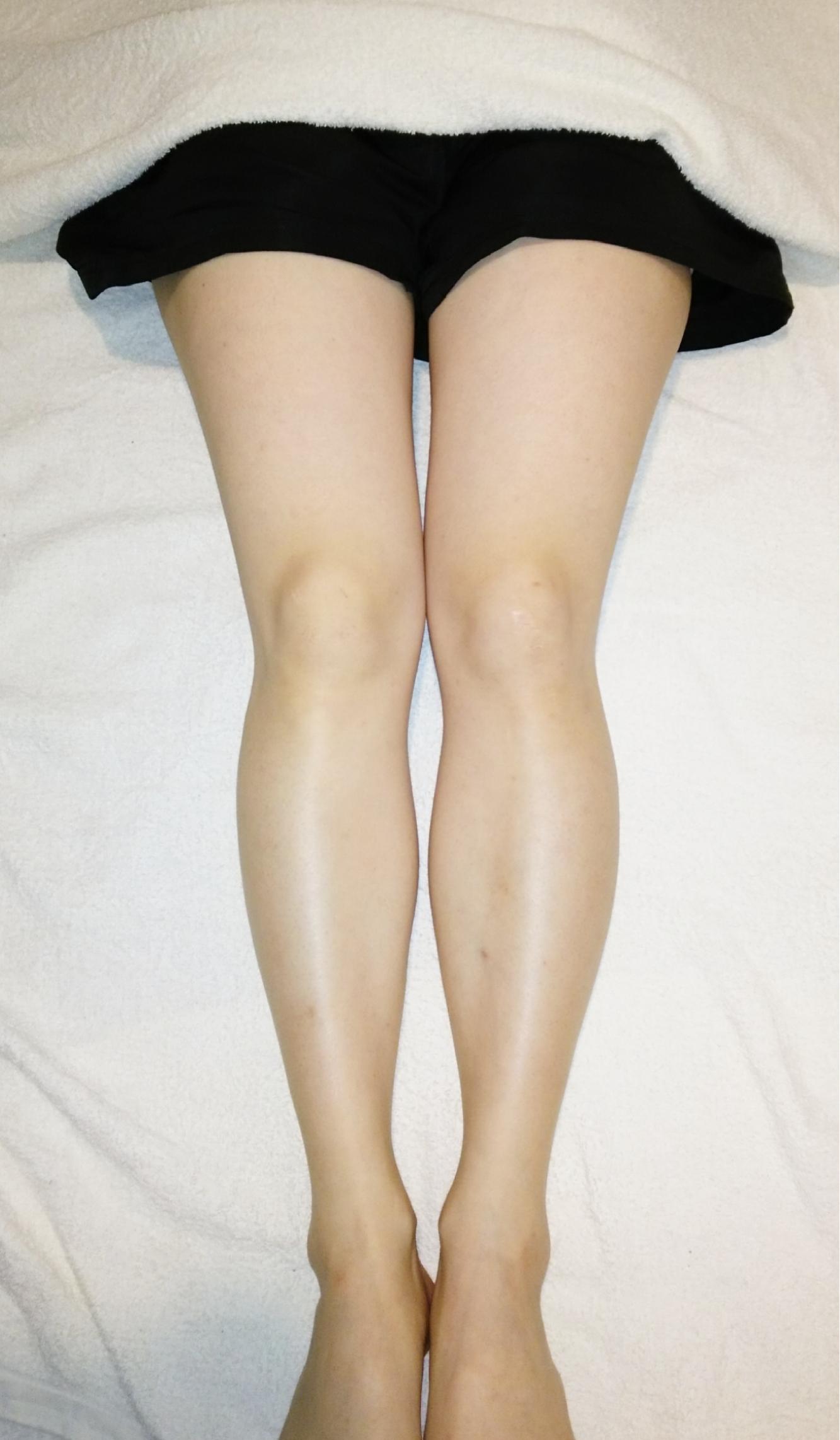 骨盤と下半身のゆがみ改善