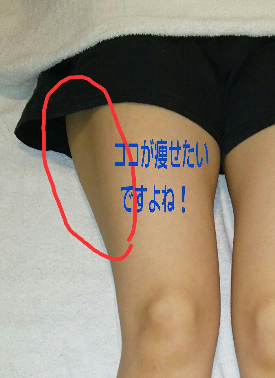 骨盤矯正の施術前。右の骨盤が歪んでる