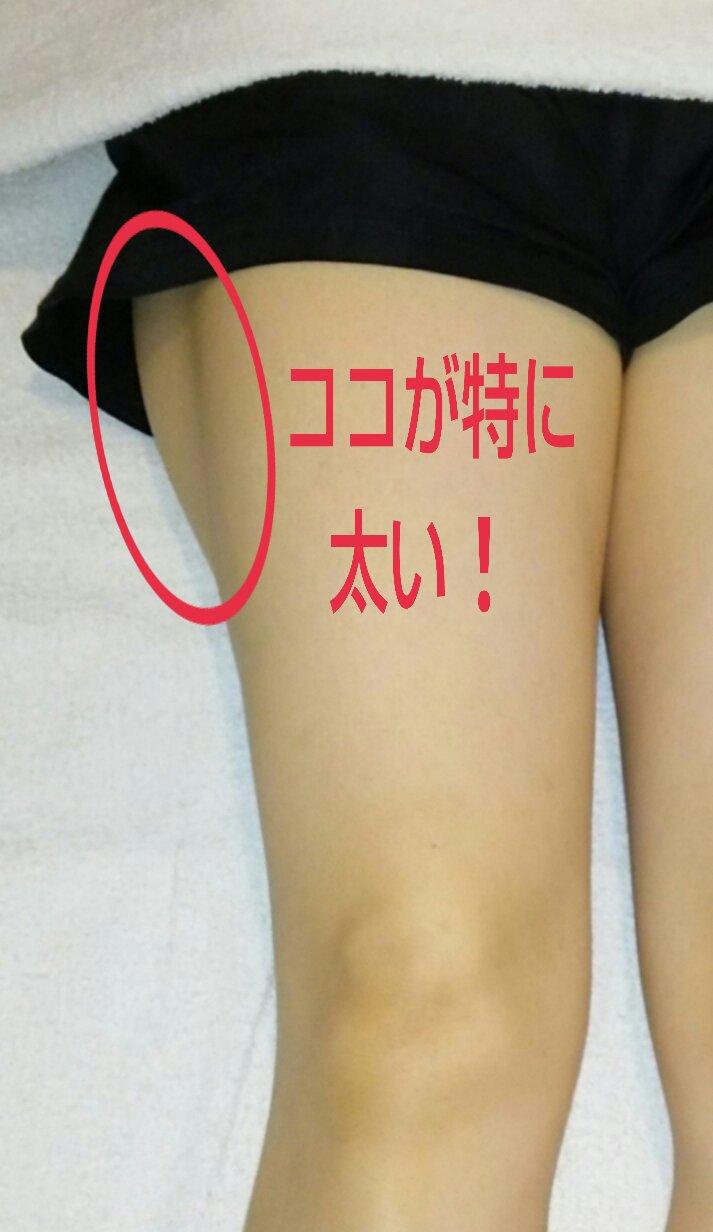 骨盤矯正とO脚矯正の施術前